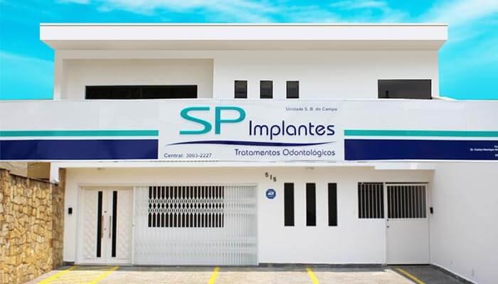 Franquias de odontologia - SP Implantes